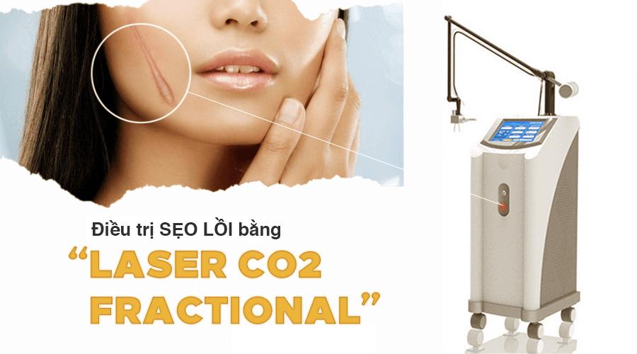 điều trị sẹo lồi bằng laser co2