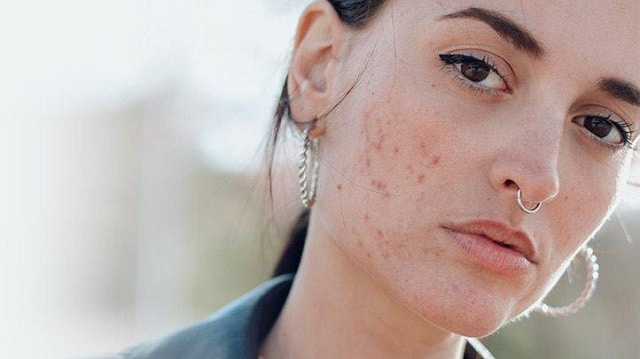 Làm thế nào để điều trị hiệu quả những vết thâm mụn trên da mặt?