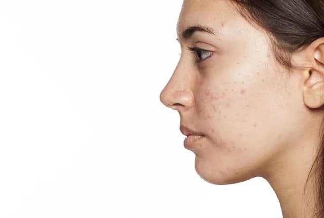 Mụn là nguyên nhân khiến những vết thâm xuất hiện và ảnh hưởng đến da mặt
