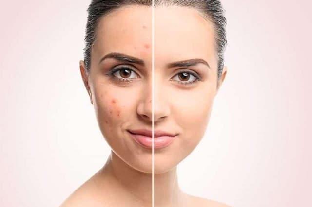 Sử dụng các sản phẩm trị mụn và chăm sóc da an toàn và hiệu quả