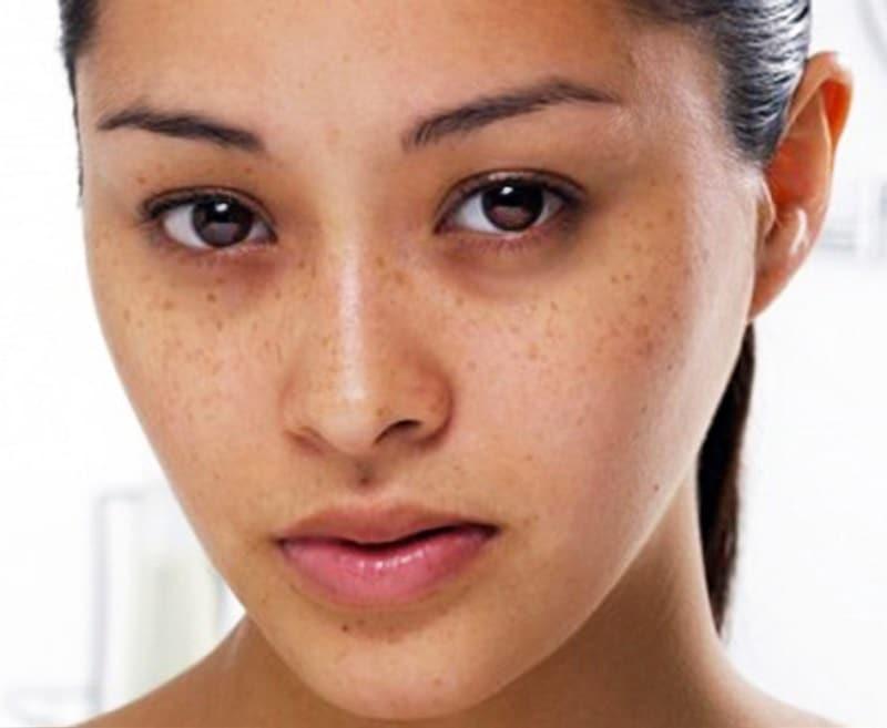Nguyên nhân khiến da mặt xuất hiện nhiều tàn nhang