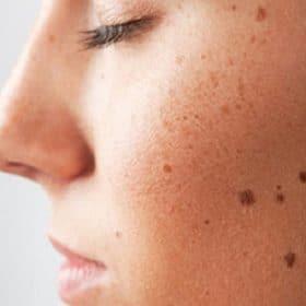 Nốt ruồi và những lý do bạn nên xóa nó vĩnh viễn