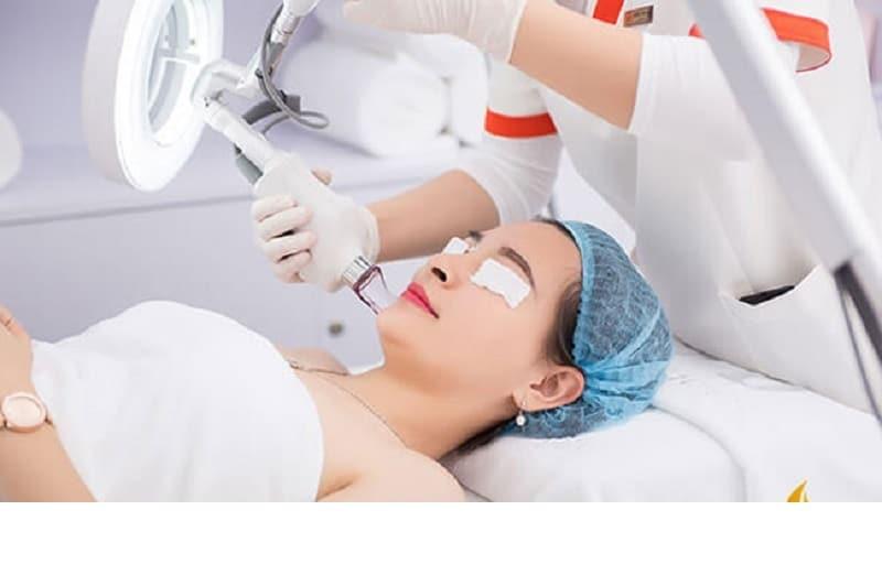Quy trình sử dụng laser để trị liệu tận gốc tàn nhang