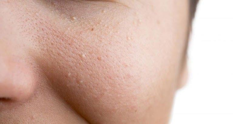Mụn ẩn dưới da làm bề mặt sần sùi, kém mịn màng