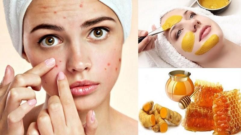 Mật ong là thần dược trong chăm sóc sắc đẹp cho phụ nữ