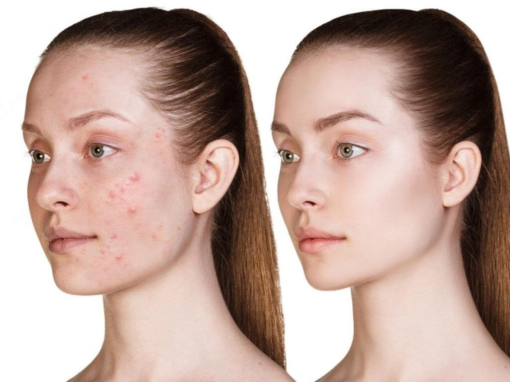 Có nhiều nguyên nhân chủ quan và khách quan dẫn đến tình trạng xuất hiện mụn ở da