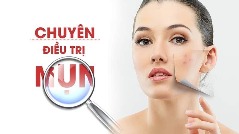 Cách điều trị mụn đem lại hiệu quả tích cực, điều trị tận gốc và an toàn cho người bị mụn ở da