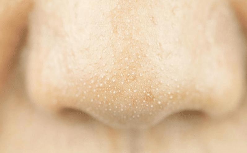 Mụn cám là những hạt nhỏ li ti xuất hiện trên mặt