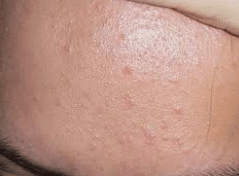 Mụn ẩn xuất hiện nhiều trên da và mọc theo cụm.