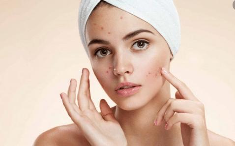 Da mặt là nơi dễ xuất hiện nhiều mụn ẩn