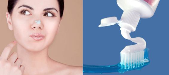 Sử dụng kem đánh răng nguyên chất trị mụn.