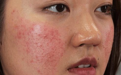 Sử dụng sai mỹ phẩm gây ra mọc nhiều mụn đối với da dầu.