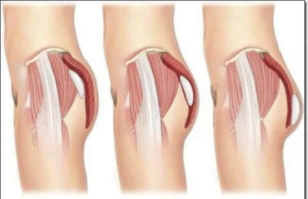 Cơ mông khỏe