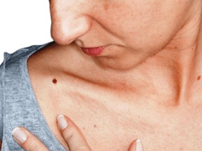 Nốt ruồi son xuất hiện ở nhiều vị trí khác nhau trên cơ thể.