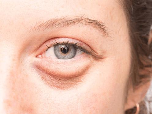 Bọng mắt xuất hiện vì quá trình lão hóa.