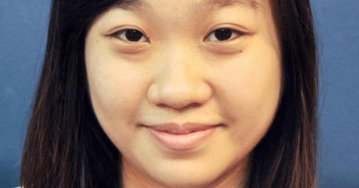 Hình ảnh mũi tẹt khá phổ biến ở người Việt Nam.