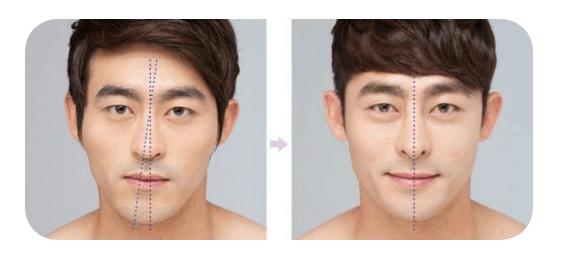Hình ảnh mũi tẹt ở nam giới trước và sau phẫu thuật chỉnh hình.