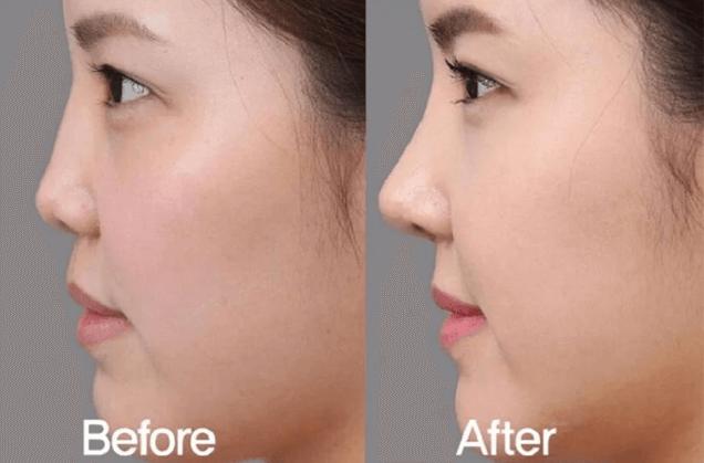 Hình ảnh trước và sau khi tiêm filler nâng mũi.
