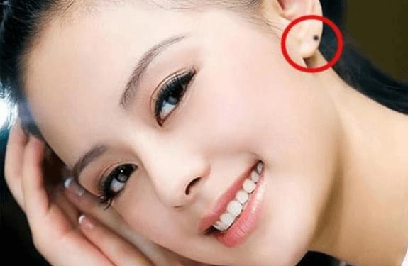 Phụ nữ may mắn trong cuộc sống khi sở hữu nốt ruồi trên tai.