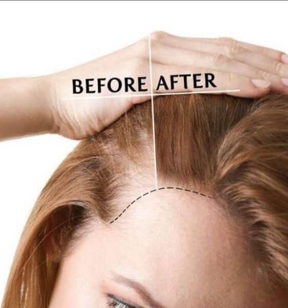 Hiệu quả cấy tóc mang lại