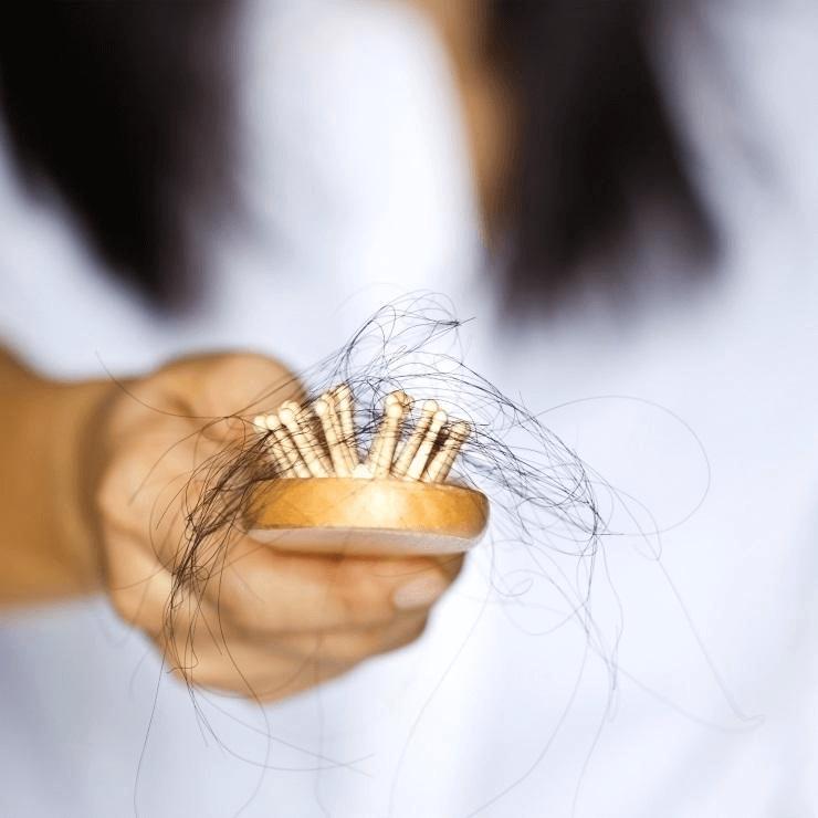 Cấy ghép là phương pháp dành cho những người rụng tóc nhiều