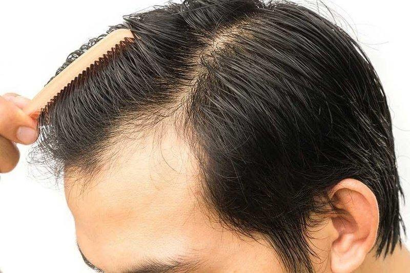 Cấy tóc để có một mái tóc mơ ước