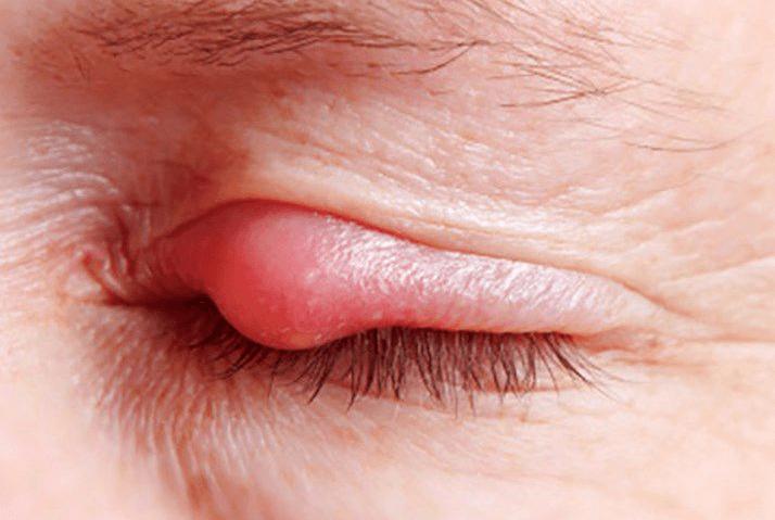 Lẹo mắt có nguy cơ nguy hiểm cần đi khám bác sĩ để đảm bảo an toàn.