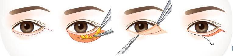 Các bước thực hiện kỹ thuật lấy mỡ bọng mắt