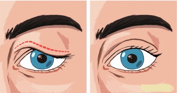 Trước và sau khi áp dụng kỹ thuật chữa sụp mí bẩm sinh