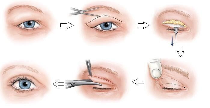 Các bước thực hiện kỹ thuật cắt mí mắt