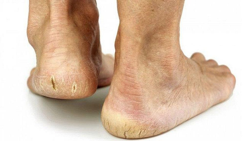 Nứt gót chân gây đa đớn, khó chịu