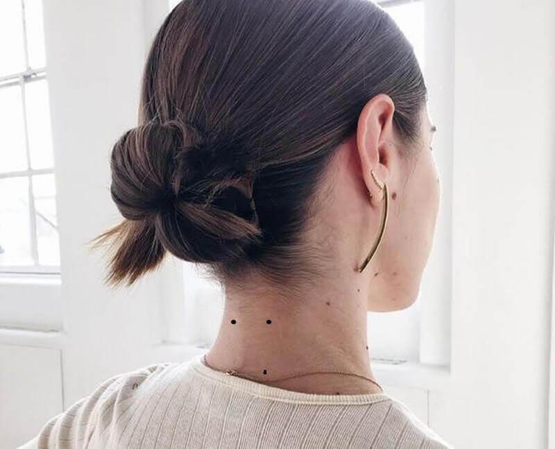 nhiều nốt ruồi sau gáy