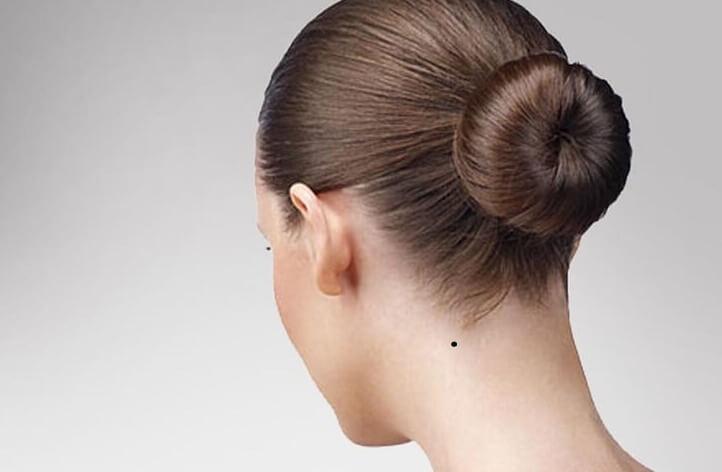 nốt ruồi sau gáy bên trái