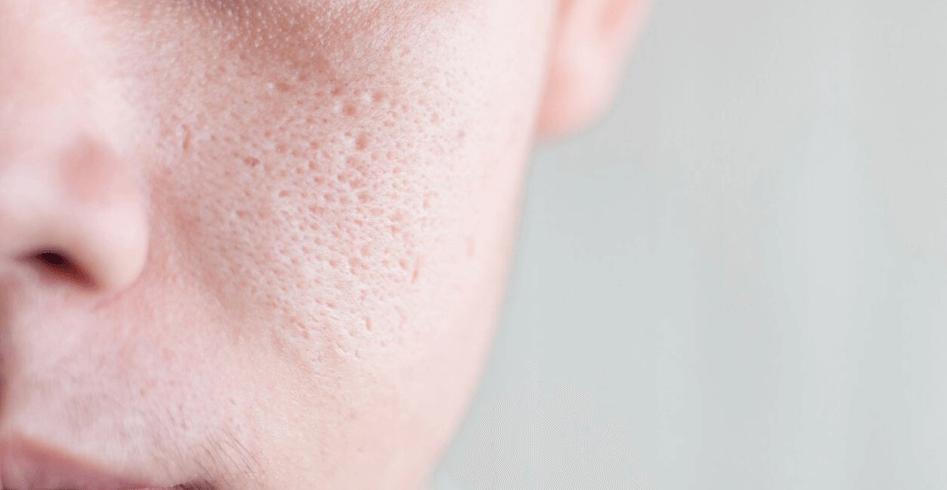 Hình ảnh lỗ chân lông có thể nhìn rõ bằng mắt thường.