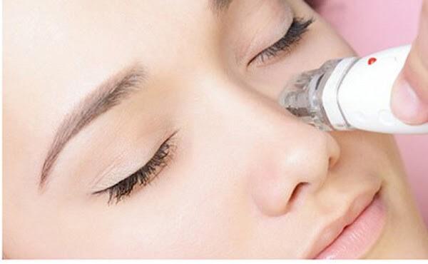 Hiệu quả sau quá trình trị liệu thâm quầng mắt bằng tia laser CO2