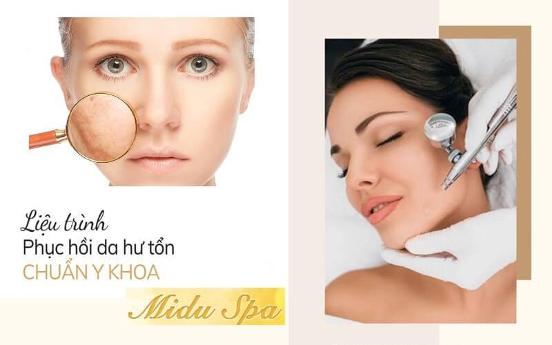 Quy trình phục hồi da hư tổn chuẩn y khoa của Midu Spa.