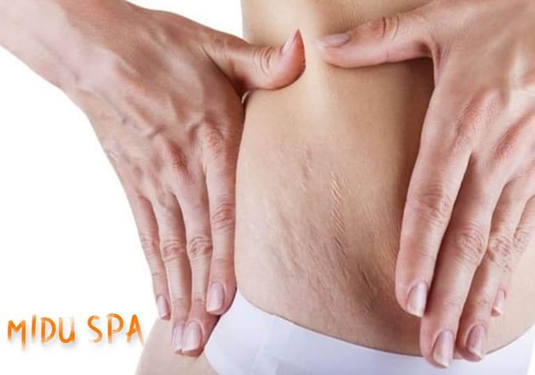 Spa trị rạn da hiệu quả cho các bà mẹ sau khi sinh con.